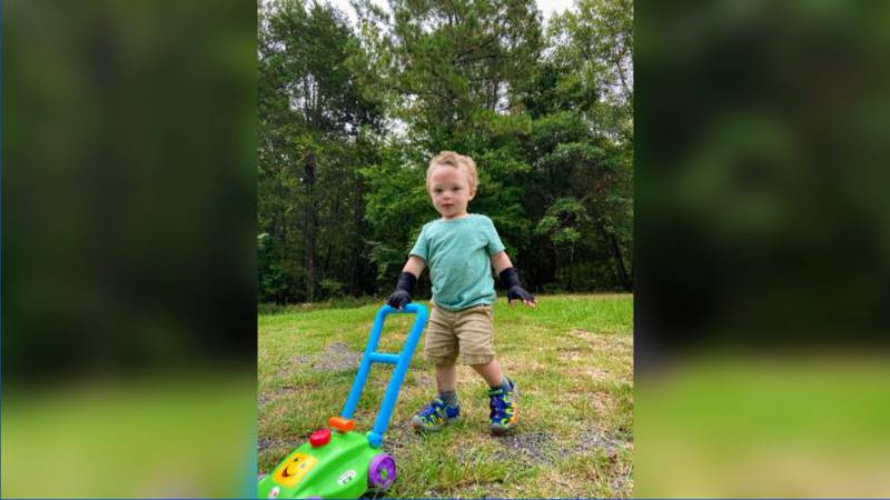 1-year-old still recovering after being left in burning car