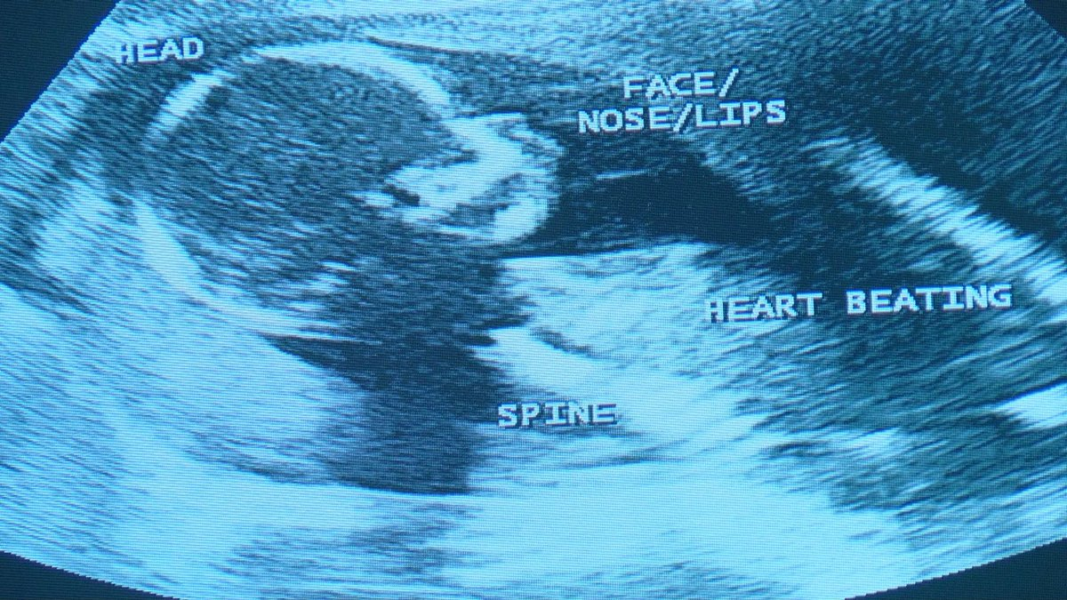 The bill would require doctors to test for heartbeats. (Source: Patrick Lloyd WMBF)